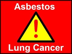Asbestos and Lung Cancer – What's The Link? Tab to know. Signs Of Lung Cancer, Lung Cancer Causes, Warning Signs, Medical Advice, Genetics, Lunges, Health Care, Education, Onderwijs