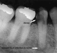 The decay enters in between the tooth where the floss cleans and spreads down the canal of the root causing an abscess at the bottom of the tooth spreading infection into the bone and the rest of the body. This tooth will need to be extracted and replaced with a dental implant and crown, or saved with a root canal and crown.