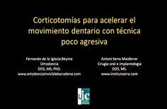 Caso Clínico: Corticotomías para acelerar el tratamiento de ortodoncia | Odonto-TV