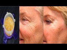 Crema de faţă antirid preparată în acasă! Rezultatele se văd după doar 7 zile - YouTube Daily Beauty, Vaseline, Glowing Skin, Beauty Hacks, Projects To Try, Green, Youtube, Varicose Veins, Plant
