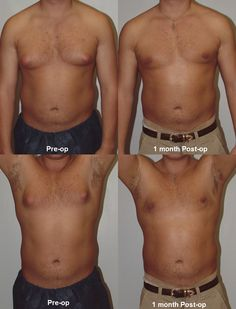 how to get rid of man breasts # http://gynexinbreastreduction.com/how-to-get-rid-of-man-breasts