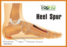 Home Remedies for Heel Spurs http://greatabsnow.net/blog/weight-loss/home-remedies-for-heel-spurs-2/