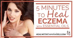 5 Minutes to heal Eczema with essential oils - HEAL WITH ESSENTIAL OILS