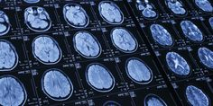 Brain Implants To Cure Mental Disorders May Soon Be A Thing The Huffington Post  | By Dominique Mosbergen  Posted: 05/27/2014 4:37 am EDT