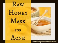 Raw Honey Mask for Acne. Every time I do this Caleb always tells me my face is glowing and skin looks great, he asks me what the secret was and he couldn't believe it. I do this about every two weeks