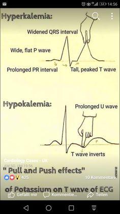 Irr heart rhythms when potassium, na, etc off balance Cardiac Nursing, Nursing Mnemonics, Nclex, Nursing School Notes, Medical School, Nursing Information, Emergency Medicine, Nursing Tips, Nursing Students