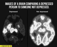 A PET scan can compare brain activity during periods of depression (left) with normal brain activity (right). An increase of blue and green colors, along with decreased white and yellow areas, shows decreased brain activity due to depression. Beating Depression, Depression Help, Depression Symptoms, Postpartum Depression, Depression Hurts, Depression Problems, Explaining Depression, Understanding Depression, Narcissist