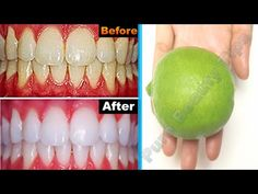 In just Three Minutes, White Teeth Whiten And Shiny Like Pearls, This Recipe ! Pure Beauty Tips Teeth Whitening System, Charcoal Teeth Whitening, Natural Teeth Whitening, Whitening Kit, Charcoal Toothpaste, Beauty Secrets, Beauty Hacks, Beauty Tips, Pure Beauty