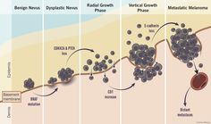 Grazie ad una terapia sperimentale costituita da un virus dell'herpes modificato geneticamente si prospettano nuove speranze per il trattamento del melanom