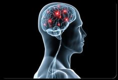 Brain Functioning and Personality Changes in Parkinson's Disease – Patient Doctor Ring Neurocardiogenic Syncope, Central Sleep Apnea, Circadian Rhythm Sleep Disorder, How To Stop Snoring, Brain Fog, Sans Gluten, Your Brain, Chiropractic, Migraine