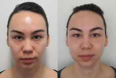 Results of the first Intraceuticals Treatment! Can you see a difference? #IntraceuticalsWedding