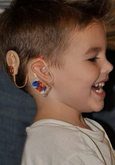 Use sticker to add fun to cochlear implants