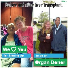 Herb B, liver transplant recipient, before and after. Transplantation is a transformative experience beyond words. Herb and his family are profoundly grateful to his donor and his donor's family. Back to life and beyond!