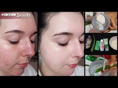 Beauty Bar, Beauty Skin, Beauty Makeup, Best Skin Care Routine, Skin Care Tips, Face Skin Care, Body Treatments, Diy Makeup, Face And Body