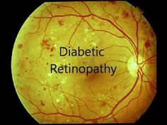 One of the most serious health complications associated with diabetes is development of diabetic retinopathy. Diabetic retinopathy is caused due to damaged blood vessels of the retina. The layer of tissue at the back of the inner eye is called retina. Its function is to change light and images entering to the eye into nerve signals, which reaches brain and due to this we can see.