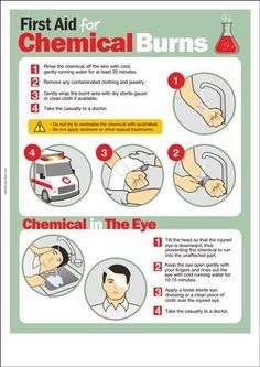 Chemical Safety Poster : First Aid For Chemical Burns Camping First Aid Kit, Emergency First Aid, Emergency Preparation, Emergency Medicine, In Case Of Emergency, Emergency Kits, First Aid Kit Checklist, First Aid Tips, Basic First Aid
