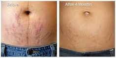 Stretch Marks Removal Cream, 3 Best Sellers Reviewed For You