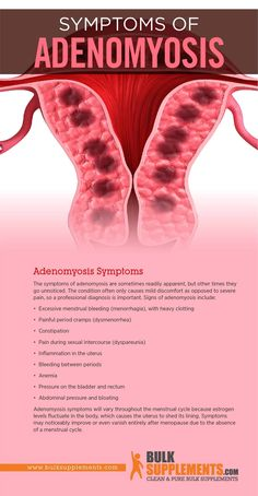 Endometriosis Diagnosis, Endometriosis Awareness, Laparoscopy Endometriosis, Fibromyalgia, Transvaginal Ultrasound, Disease Symptoms, Health Matters, Pcos, Studio