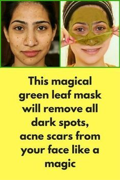 This magical green leaf mask will remove all dark spots, acne scars from your face like a magic Dealing with Dark Spots, Pimple or Acne Scars than you'll be surprised to know that how this magical green leave can give you that perfect looking crystal clear skin. In this video, I have shared a very simple and 100% natural home remedy that'll help you a lot. For this Diy mask 4-5 fresh spinach … #acneremediesscar