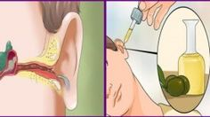 Remove The Ear Ache And Ear Infection With Natural Cures ! - Run Healthy Lifestyle Ear Infection Home Remedies, Earache Remedies, Health Remedies, How To Get Rid, How To Remove, Tinnitus Symptoms, Ear Wax, Natural Cures, Natural Health