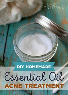 DIYHomemadeEssentialOilAcneTreatment