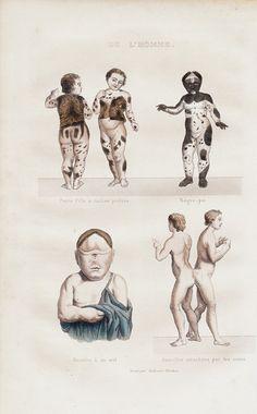 1848 Rare bizarre Antique FREAKS print. by TwoCatsAntiquePrints