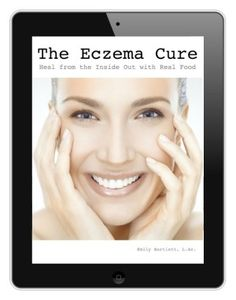 The Eczema Cure ebook by Emily Bartlett, holistic health practitioner of HolisticSquid.com