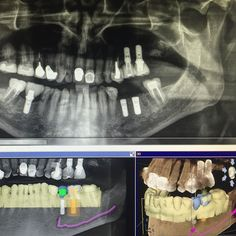 Our first fully guided surgery was a huge success!! Thanks to @sirona3d and @cerecbysirona for helping us digitally plan this case. We were able to extract graft and implant in the exact positions laid out by our referring dentist all in one visit. Isn't technology great!? #implantdentistry #CerecSD #dentalextraction #dentalimplants by coastalofs Our Dental Bridges Page: http://www.myimagedental.com/services/cosmetic-dentistry/bridges/ Other Cosmetic Dentistry services we offer…