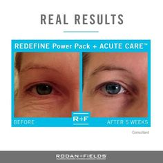 Tired of looking tired? REDEFINE and Acute Care fills wrinkles (without needles) and stimulate the production of collagen and elastin to visibly firm your skin.  Try it for 60 days. If you're not satisfied, return your empty bottles for a full refund. * excluding tax and shipping.  www.jrw.myrandf.com  #health #wellness #beauty #wealth