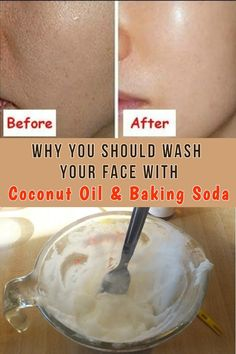 Coconut oil is one of the most useful natural oils you can use and baking soda is a great facial scrub a winning combination! beauty beautitricks beautyskin surprising uses for baking soda Baking Soda Shampoo, Baking Soda Uses, Face Mask Baking Soda, Baking Soda For Skin, Baking Soda Coconut Oil, Baking Soda Beauty Uses, Baking Soda Scrub, Hair Cleanser, Facial Cleanser