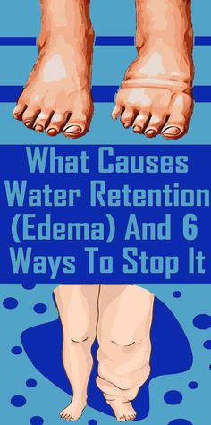 6 Simple and Effective Home Remedies For Water Retention - Healthstasy Health Tips, Health And Wellness, Health And Beauty, Health Fitness, Health Goals, Health Matters, Honey Benefits, Turmeric Health Benefits, Herbal Remedies
