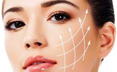 PPDO thread lift for facial contouring