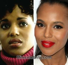 Kerry Washington is one of the hottest TV actresses, but did you know she has some secrets that the public should not know? Kerry Washington nose job and plastic surgery and husband. CLICK BELOW ON THE LINK to see! Bra Size Pictures, Job Pictures, Kerry Washington Husband, Plastic Surgery Photos, Eyelid Surgery, Celebrities Before And After, Celebrity Plastic Surgery, Cosmetic Procedures, Two Faces