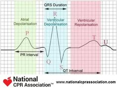 ECG waves - preparing for your arrhythmia classes #nursestudent #futurenurse #nationalCPRassociation #nationalCPR