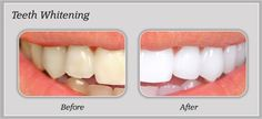 Are you tired of stained yellow teeth. Get professional Teeth Whitening Treatment at Novadent.