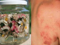 Tyto milé kytičky nám rostou volně pod nohama. Co ale dokáží, když je uvaříte? Tyto účinky se vyplatí znát!