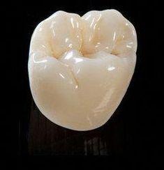 Classy Dental Crown Front Teeth #oralhealthafrica #DentalCrownsBeforeAndAfterBeautiful Dental Art, Dental Teeth, Teeth Implants, Dental Implants, Dental Hygienist, Dental Bridge Cost, Dental Anatomy, Dental Technician, Dental Cosmetics