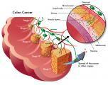 Having a tubular adenoma polyp increases one's risk of colon cancer.