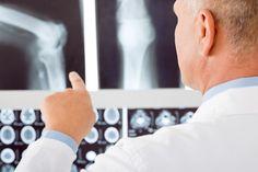 Osteopenie: voorloper van osteoporose