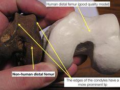 Comparison of human vs non human distal femur via @WKemp_MT_FPDoc on Twitter