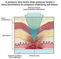 improving wound and pressure area care in a nursing home essay The wa health pressure injury prevention and management clinical includes their use in areas such as theatre, intensive care pressure wound therapy and.