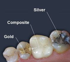 Check out our tooth colored fillings that are for today's smiles & nobody will even notice you that you have cavities!