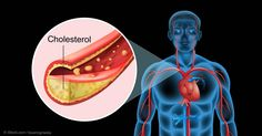 Here are seven important things you need to know about cholesterol, and how it affects your heart health. http://articles.mercola.com/sites/articles/archive/2015/01/12/7-factors-cholesterol-levels.aspx
