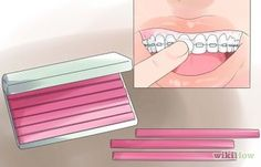 How to Take Away the Pain of New or Tightened Braces