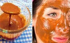 Cinnamon Extract, Honey And Cinnamon, Acne And Pimples, Acne Scars, What Happened To You, Spa Treatments, Acne Treatment, Health Fitness, How To Apply