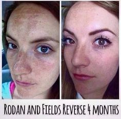 Do I need to say more? Rodan + Fields Reverse. Email or message me if you want more information on how to Reverse your dull, sun damage skin back to a youthful glow! https://brynnf.myrandf.com/Shop/Reverse