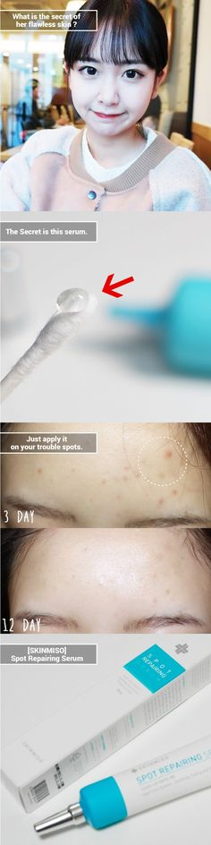 The Beauty Secret of Korean Ulzzang.   Calm & Treat your pimples with this spot repairing serum.
