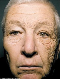 The shocking photo that reveals the damage the sun does to your face: This man was a trucker for 28 years... guess which side of his face was next to the window