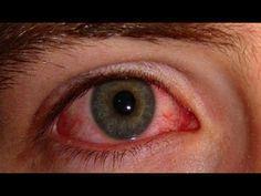 Como Eliminar Naturalmente a Síndrome dos Olhos Secos e Vermelhos! | Dicas de Saúde - YouTube