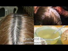 Combate las Canas prematuras, la caspa y dale vida a tu cabello con estos ingredientes - YouTube